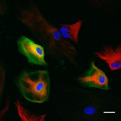 Glial cells in culture