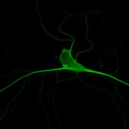 Neuron expressing tau-venus
